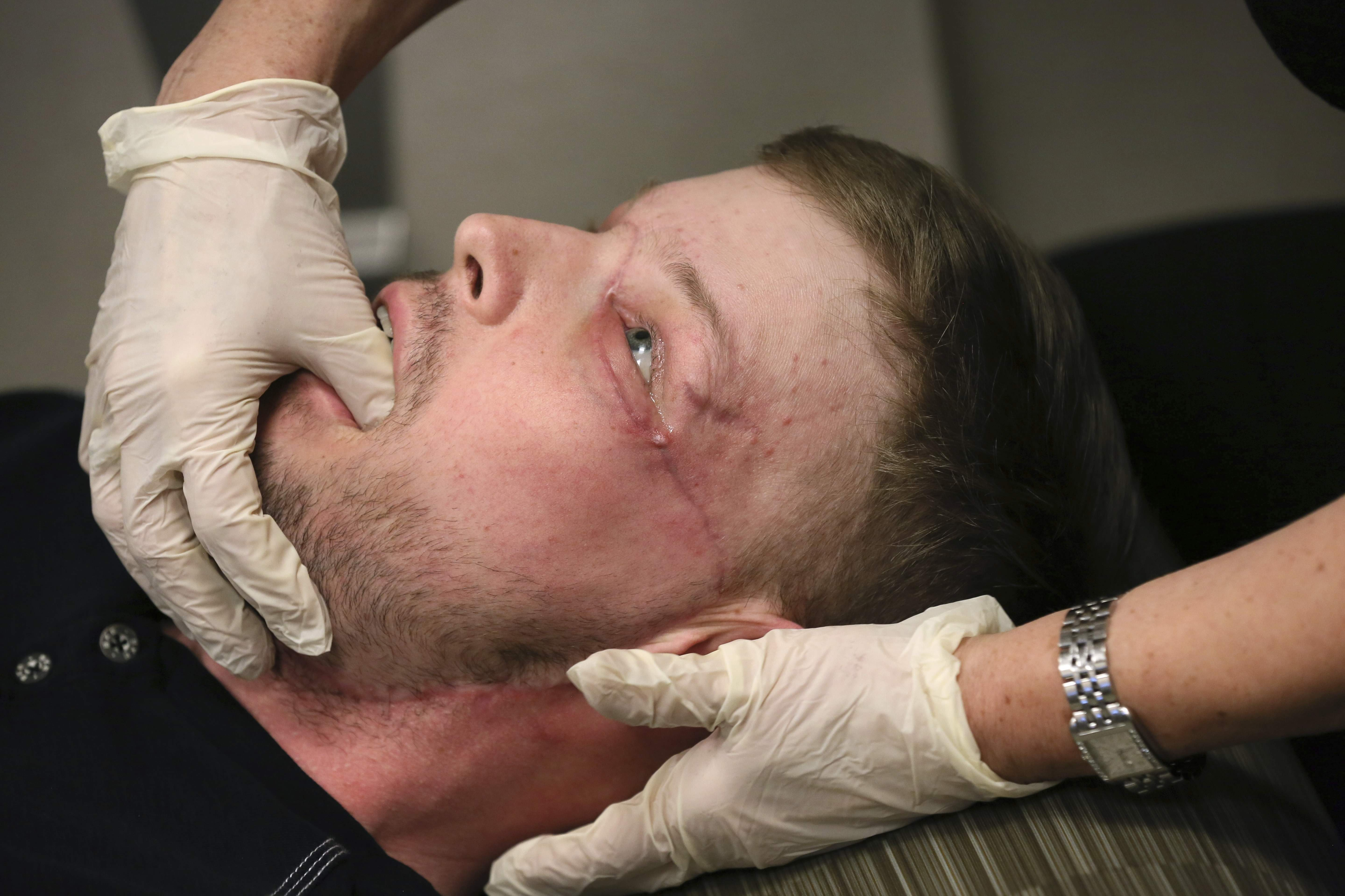 In this Jan. 24, 2017 photo, face transplant recipient Andy Sandness has his face checked during an appointment with physical therapist Helga Smars at Mayo Clinic in Rochester, Minn. THE ASSOCIATED PRESS