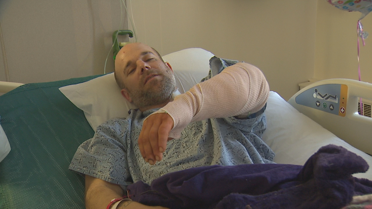 A good samaritan who was violently beaten in an attack in Burien Wednesday night is now recovering in the hospital. (Photo: KOMO News)