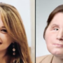 Suicide attempt survivor is youngest face transplant recipient in U.S. history