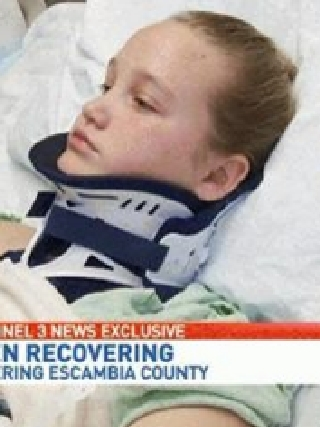 Teen girl has strong message for people who injured her in a car ...
