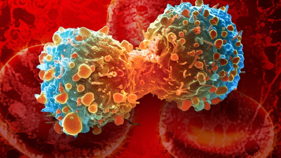 Doctors reprogram patients' own cells into cancer ...